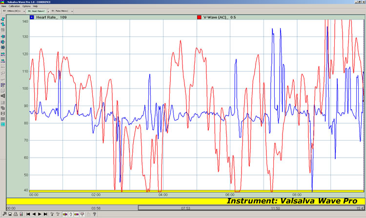 Heart Rate (Same Heart Rate As Figure 2)